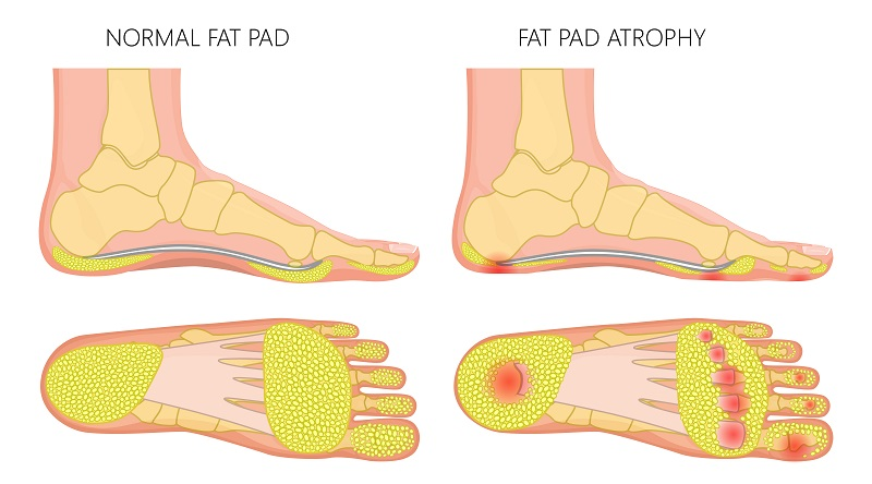 Foot fat pad atrophy